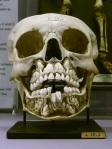 childs-skull-with-adult-teeth-preparing-to-change-the-baby-teeth